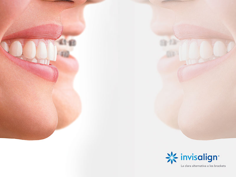 Javier Lozano asiste al programa de formación: Invisalign Mandibular Advancement treatments