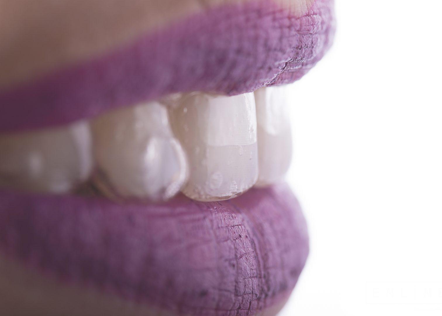 ¿Cuales son las fases de la ortodoncia invisible?
