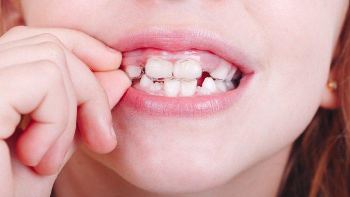 sonrisa de una niña con una ortodoncia invisible