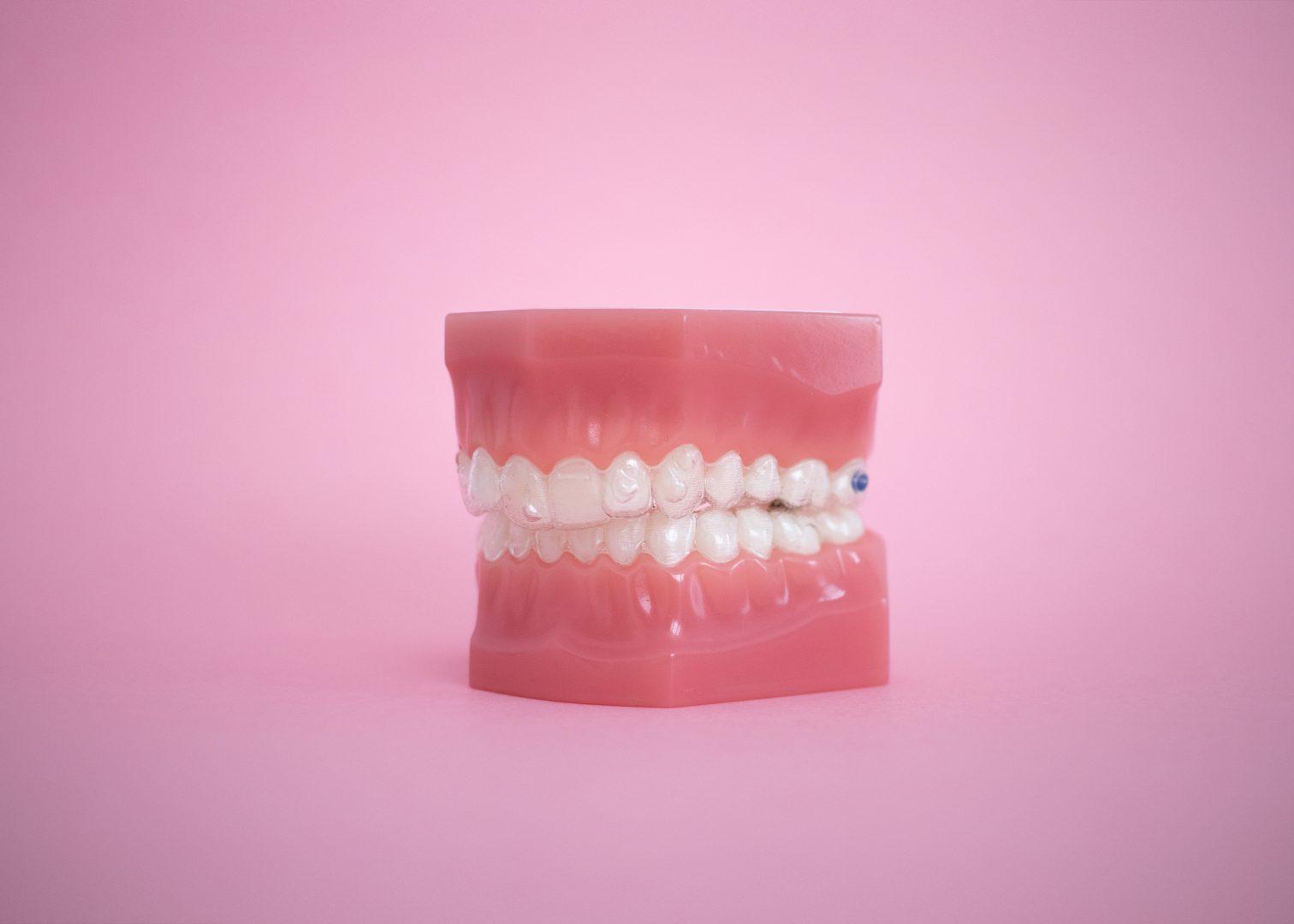 ¿Puede tratarse el bruxismo con ortodoncia?