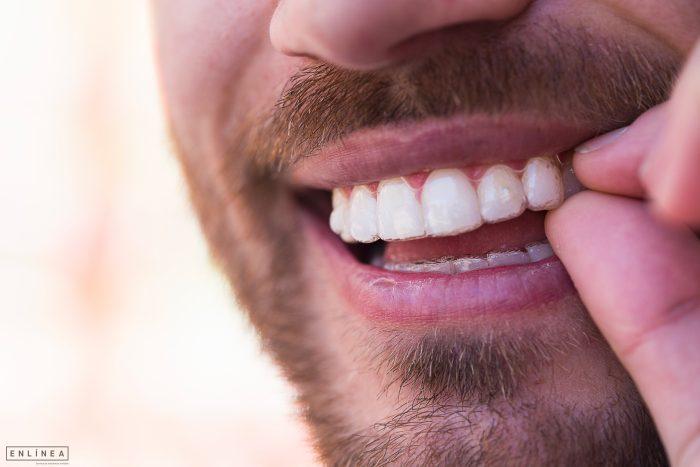 Sonrisa blanca con alineadores