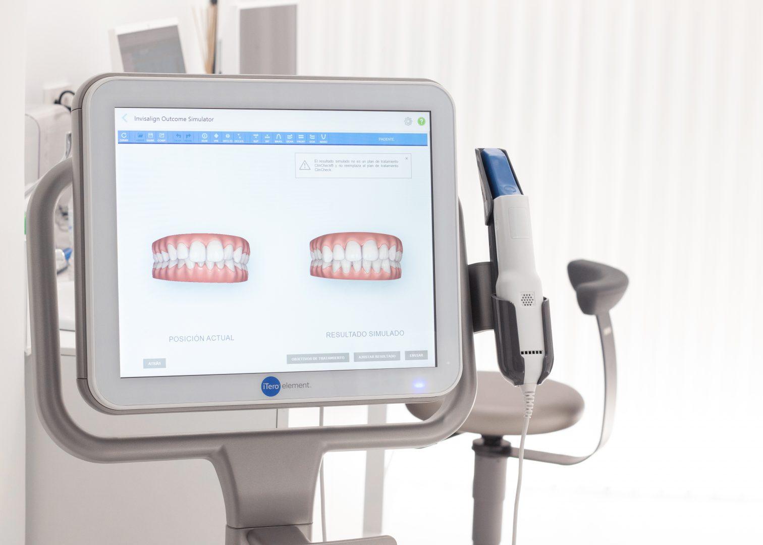 El escáner bucal iTero