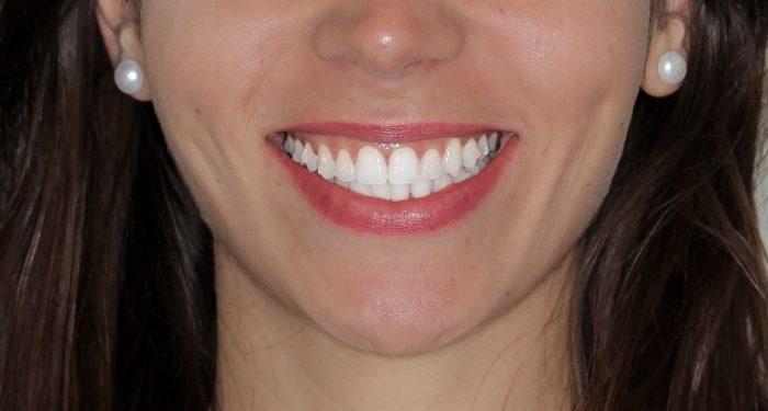 Sonrisa con ataches