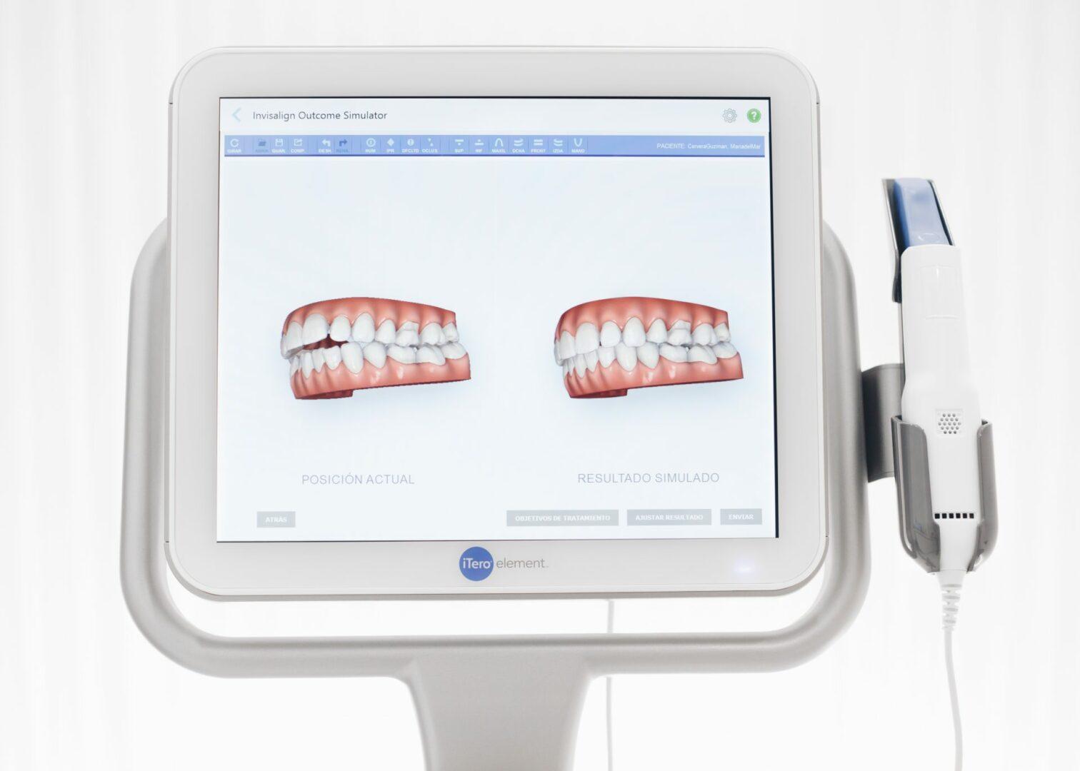 Escáner iTero mostrando el antes y el después de una boca con tratamiento de ortodoncia invisible