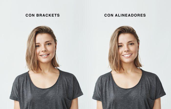 Dos chicas sonriendo, una con brackets y otra con ortodoncia invisible