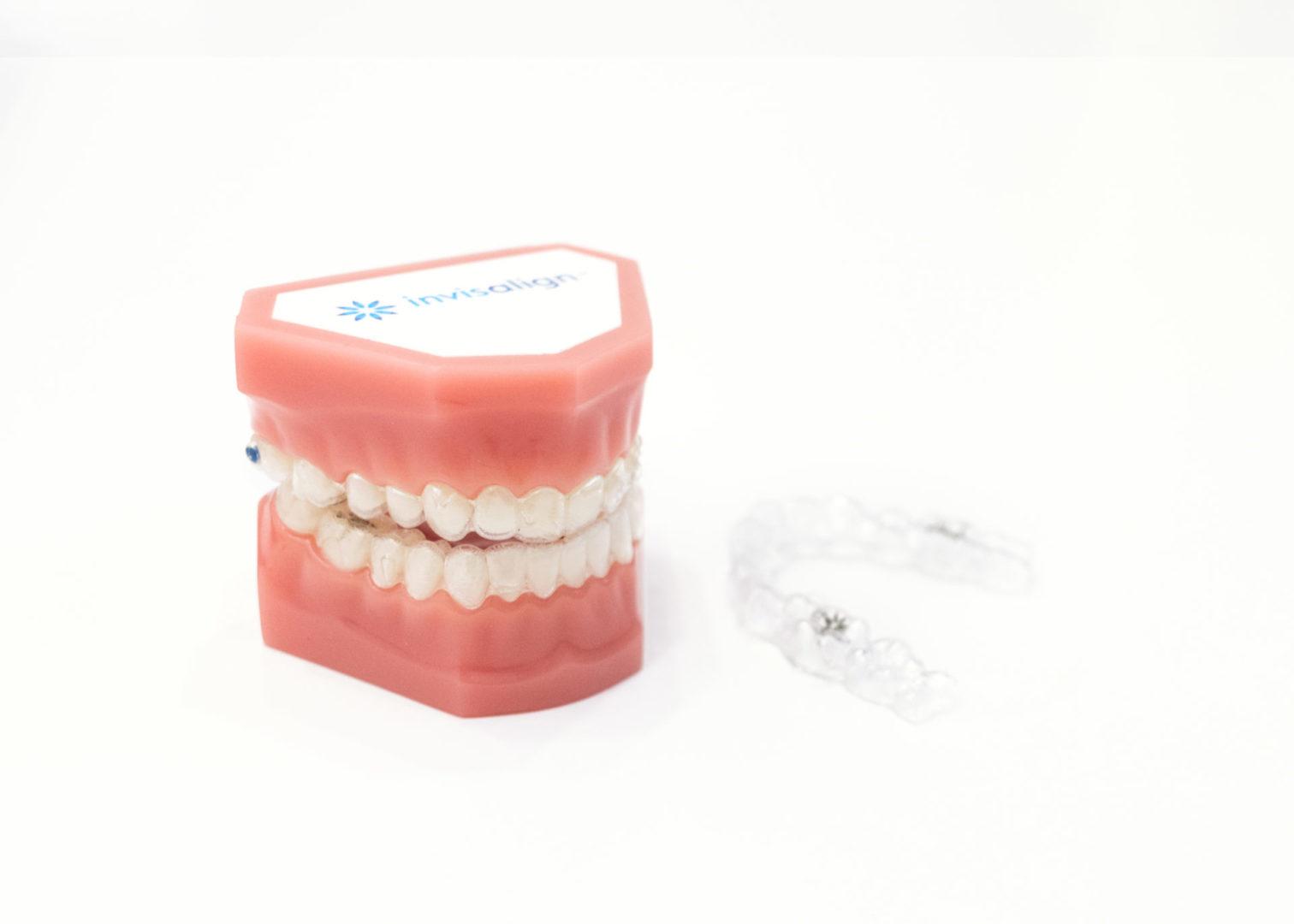 ¿Cómo afecta la alineación de los dientes a la salud del resto de la boca?