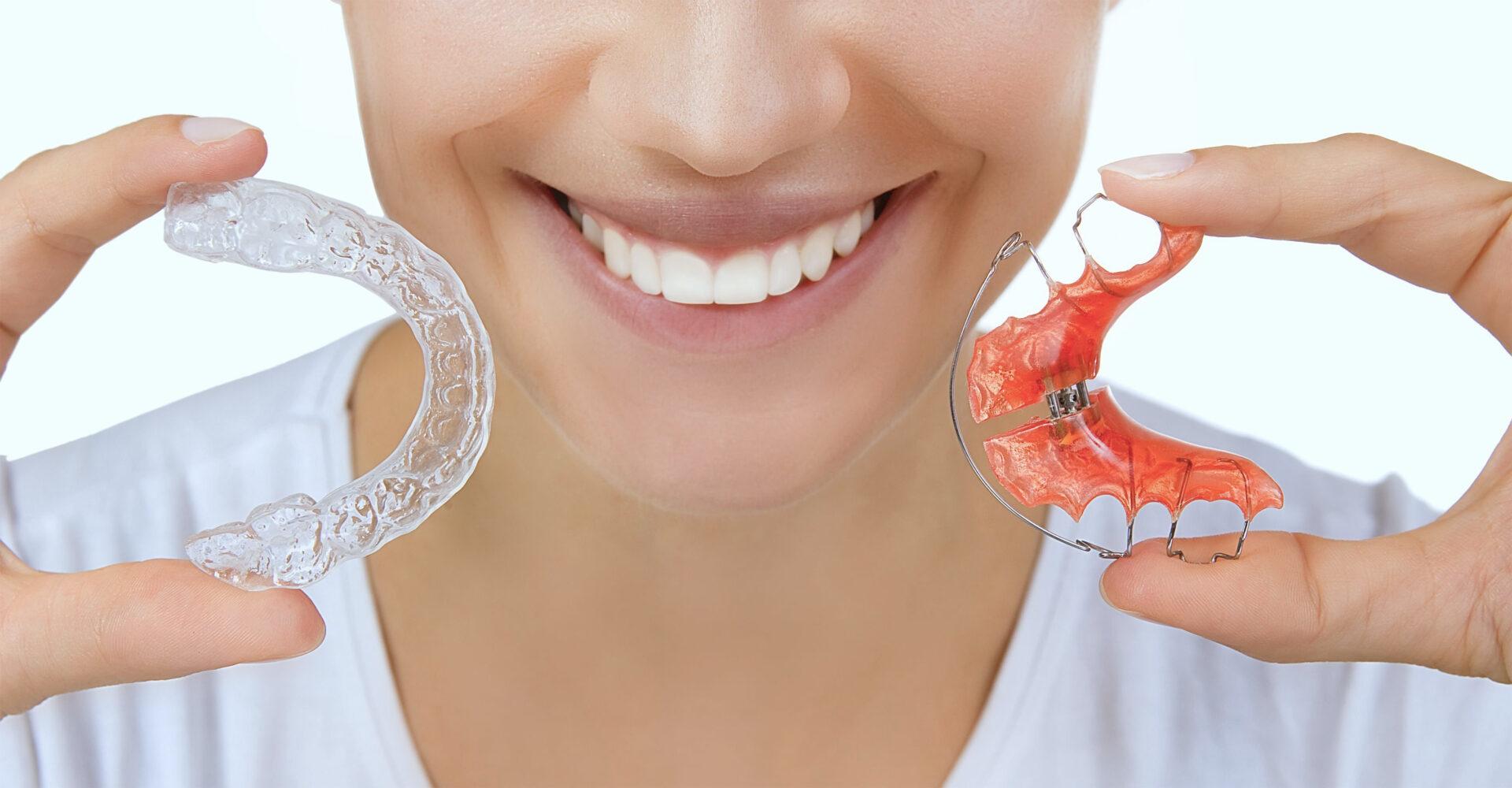 La importancia de los retenedores dentales